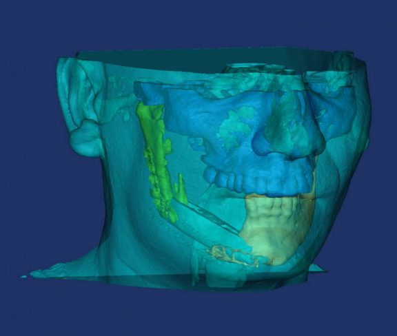 Η ζωή είναι 3D… τώρα, είναι και η χειρουργική!